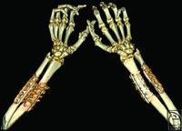 Beidseitige Computertomografie nach einer Handtransplantation