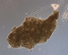 Microcystis